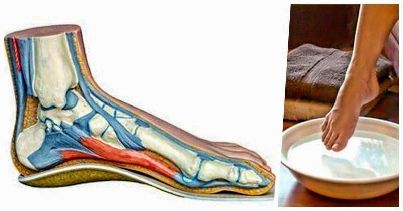 Хозяйственное мыло — отличное целительное средство, вытягивающее боль из ног